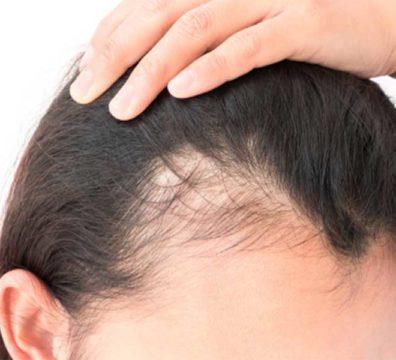 Les alopécies acquises de l'enfant ou de l'adulte.